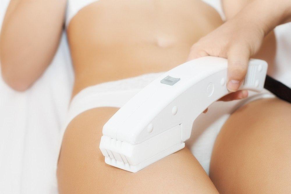 ¿Cuál es la mejor época para empezar la depilación láser y tener resultados en verano?
